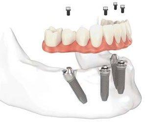 Как протича зъбното възстановяване с базални импланти?